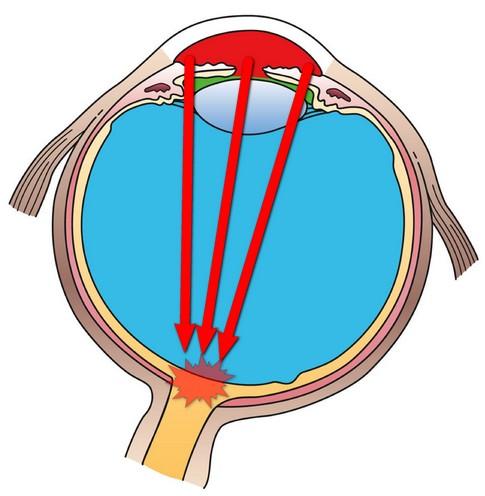 Μηχανισμός γλαυκώματος