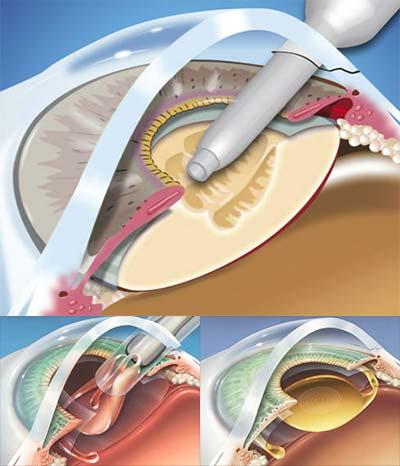 εγχείρηση καταρράκτη - βήματα